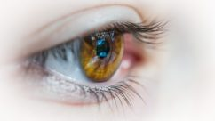 Eye Protection From Skin Cancer on Eyelid